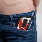 UK lagging behind Europe for use of insulin pumps