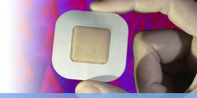 Researchers were able to preload enough insulin into the coin-sized adhesive microneedle patches to enable clinical use. [Image courtesy of UCLA]