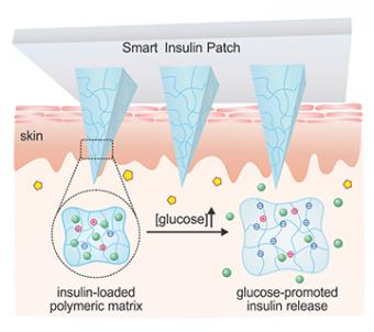 Schematic mechanism of glucose-responsive smart insulin patch. (Credit: Zhen Gu Lab/UCLA)